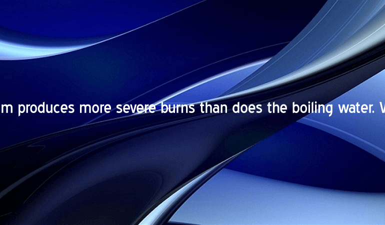 Steam produces more severe burns